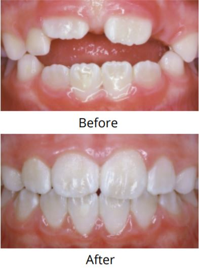 Before & After of Teeth